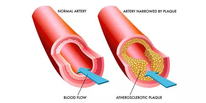 Artères bouchées et la solution avec Oméga-3