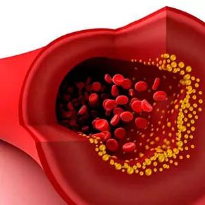 L'huile de Krill réduit le cholestérol