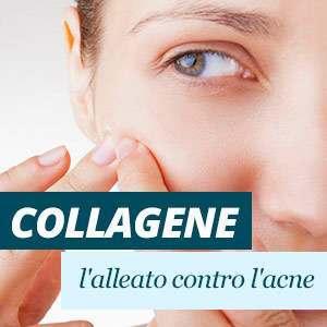 collagene e acne